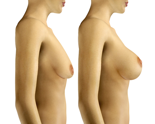 3d rendered illustration breast enlargement with uplift surgery before and after-img-blog