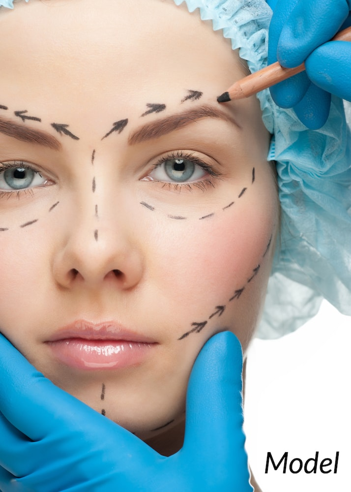 Woman with surgical lines drawn on face