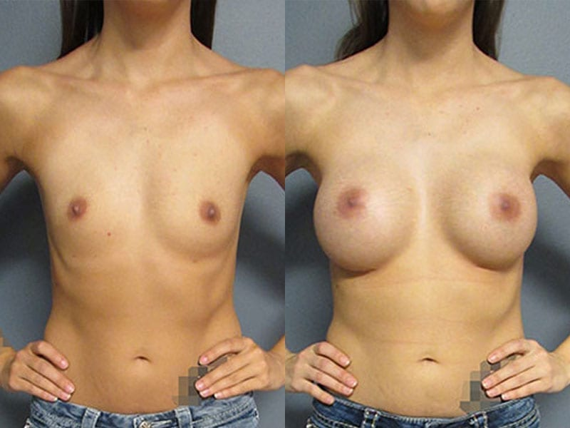 Before & After Breast Augmentation Photos | Dr. Matt Goldschmidt | Independence, OH before-after-breast-augmentation-dr-matt-goldschmidt-independence-oh