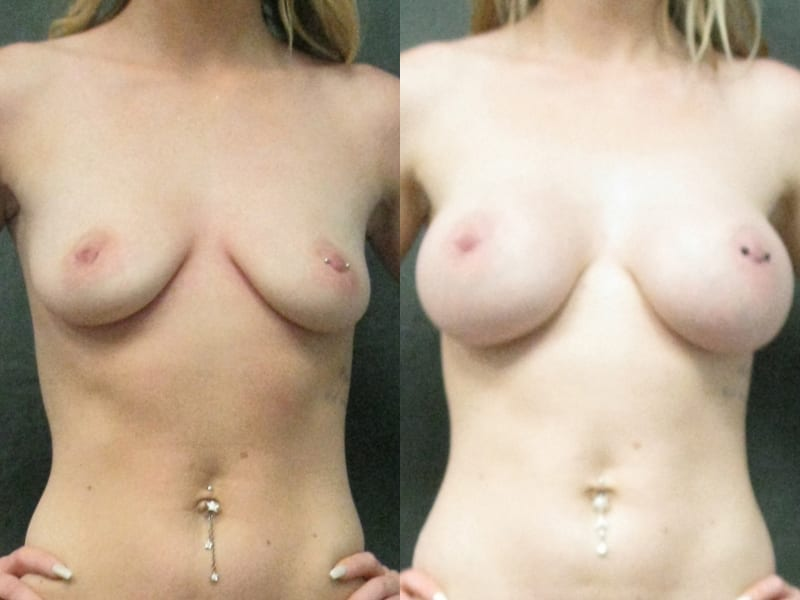 Breast Augmentation – Saline Implants Patient 03 before and after facing forward, hands on hips. breast-aug-saline-before-after-patient-3a