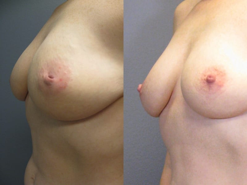 Inverted Nipple Correction Patient 02 before and after angled left. breast-nipple-correction-before-after-patient-2a