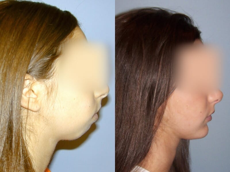 Before & After Facial Implants Photos | Dr. Matt Goldschmidt | Independence, OH before-after-facial-implants-dr-matt-goldschmidt-independence-oh