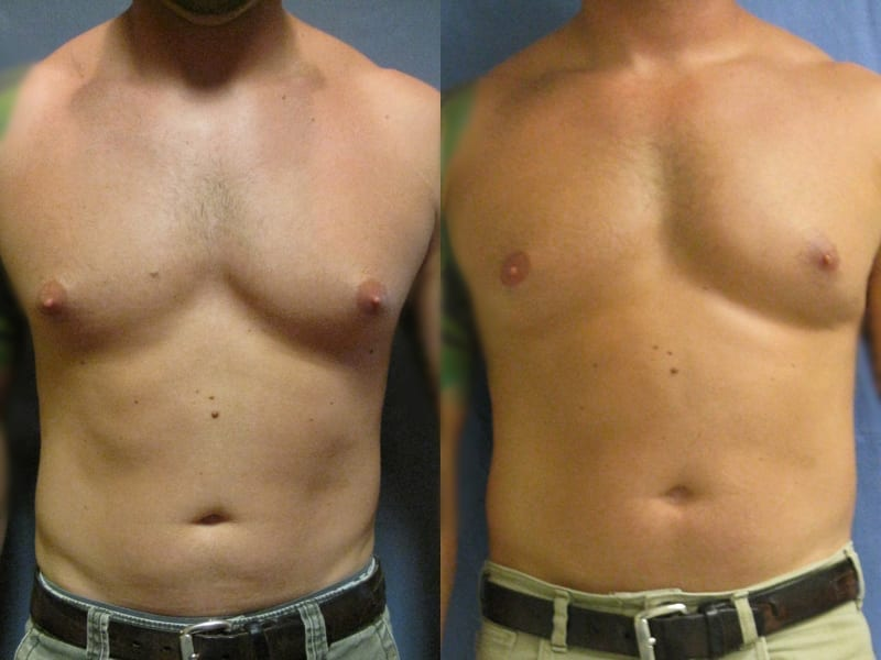 Gynecomastia Patient 02 before and after facing forward. gynecomastia-before-after-patient-2a