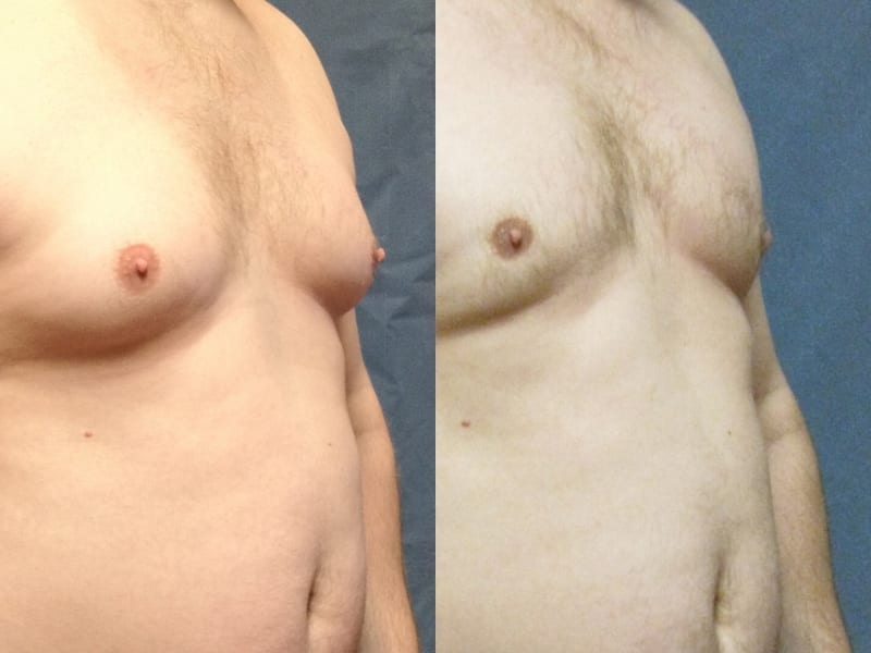 Gynecomastia Patient 03 before and after angled right. gynecomastia-before-after-patient-3a