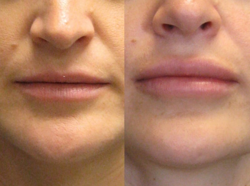 Lip Enhancement Patient 01 facing forward, showing difference in lips. lip-enhancement-before-after-patient-1a