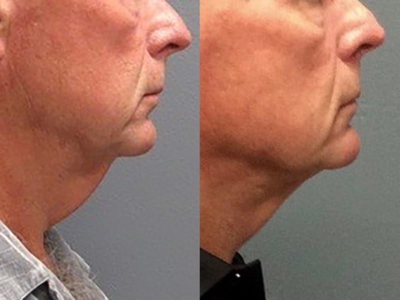 Neck-Lift Patient 01 before and after, facing right, showing reduction in neck. neck-lift-before-after-patient-1a