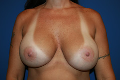 Breast implant revision surgery after