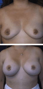 Dr. Andreasen Breast Augmentation Client Before and After photos