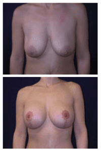 Andreasen Breast Augmentation Case