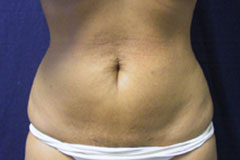 Liposuction in Orange county After image