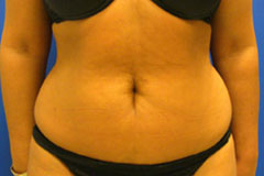 Liposuction in Orange county before image