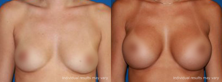 results before and after surgery