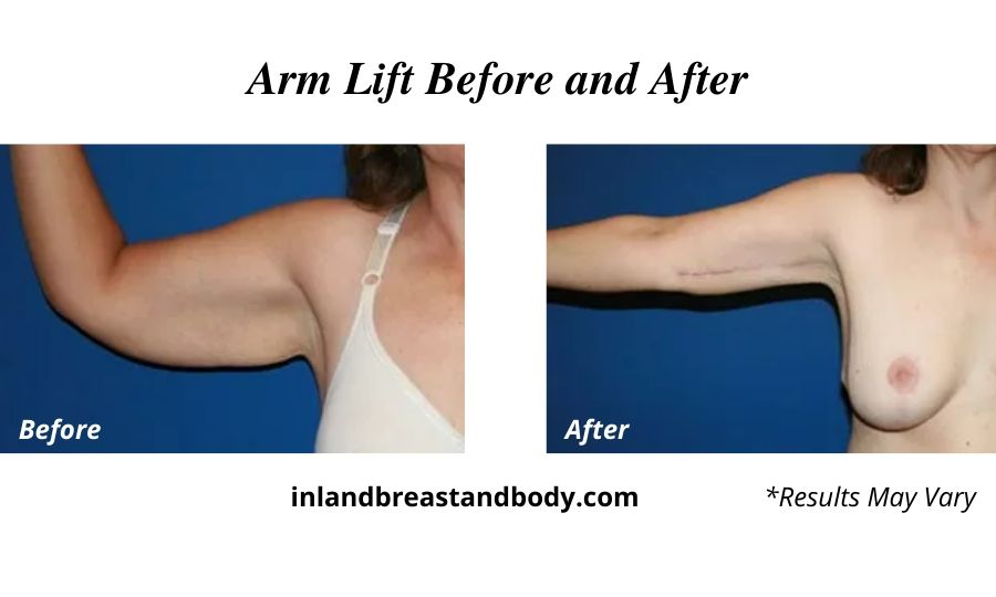 A woman before and after her arm lift.