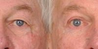 Upper and Lower Eyelid Lift  Blepharoplasty Before and After Dr Edmon Khoury 100