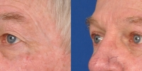 Upper and Lower Eyelid Lift Blepharoplasty Before and After Dr Edmon Khoury 101