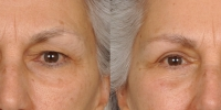 Upper and Lower Eyelid Lift Blepharoplasty Before and After Dr Edmon Khoury 102