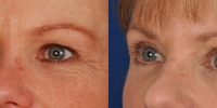 Upper and Lower Eyelid Lift  Blepharoplasty Before and After Dr Edmon Khoury 104