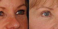 Upper and Lower Eyelid Lift  Blepharoplasty Before and After Dr Edmon Khoury 105
