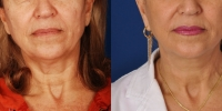 dr-khoury-facelifts-01