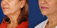dr-khoury-facelifts-02