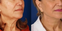 dr-khoury-facelifts-03