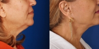 dr-khoury-facelifts-04
