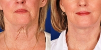 dr-khoury-facelifts-08