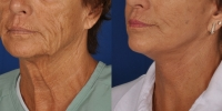 dr-khoury-facelifts-11