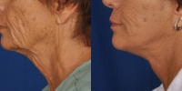 dr-khoury-facelifts-12