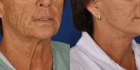 dr-khoury-facelifts-14