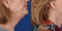 dr-khoury-facelifts-16