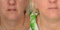 dr-khoury-facelifts-20