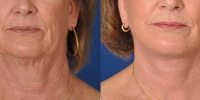 dr-khoury-facelifts-22