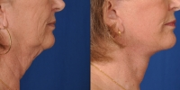 dr-khoury-facelifts-24