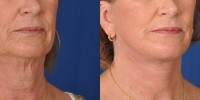 dr-khoury-facelifts-25