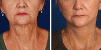Laser Assisted Facelifts (SmartLifting) 01 / Before and after photo of a laser assisted full lower facelift with neck liposuction – ONE WEEK LATER!