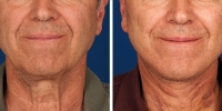 Laser Assisted Facelifts (SmartLifting) 05 / Before and after photo of a laser assisted full lower facelift with platysmaplasty – ONE WEEK LATER!