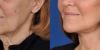 Lower Facelift Necklift Before and After Dr Edmon Khoury 101