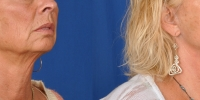 Lower Facelift Necklift Before and After Dr Edmon Khoury 105