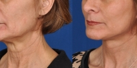 Lower Facelift Necklift Before and After Dr Edmon Khoury 108