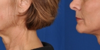 Lower Facelift Necklift Before and After Dr Edmon Khoury 111