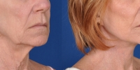 Lower Facelift Necklift Before and After Dr Edmon Khoury 114
