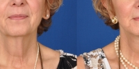 Lower Facelift Necklift Before and After Dr Edmon Khoury 117