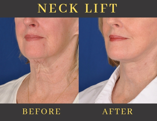 NECK LIFT-img-blog