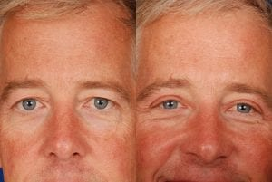 Upper-Eyelid-Lift-Blepharoplasty-Before-and-After-Dr-Khoury-102