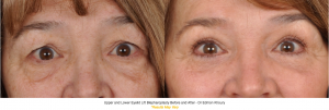 Upper and Lower Eyelid Lift Before and After