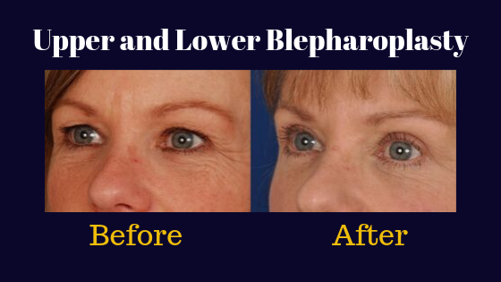 Results of a lower blepharoplasty performed by Dr. KLhoury in Denver