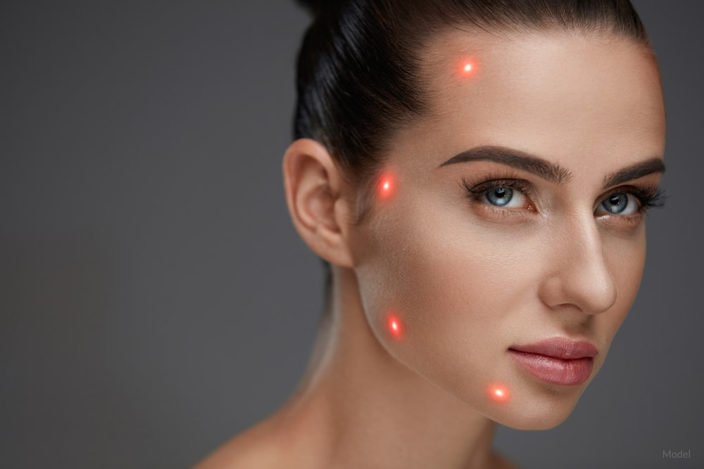 During a Smartlipo® procedure, laser energy is used to liquefy fat in the face and tighten surrounding tissue.