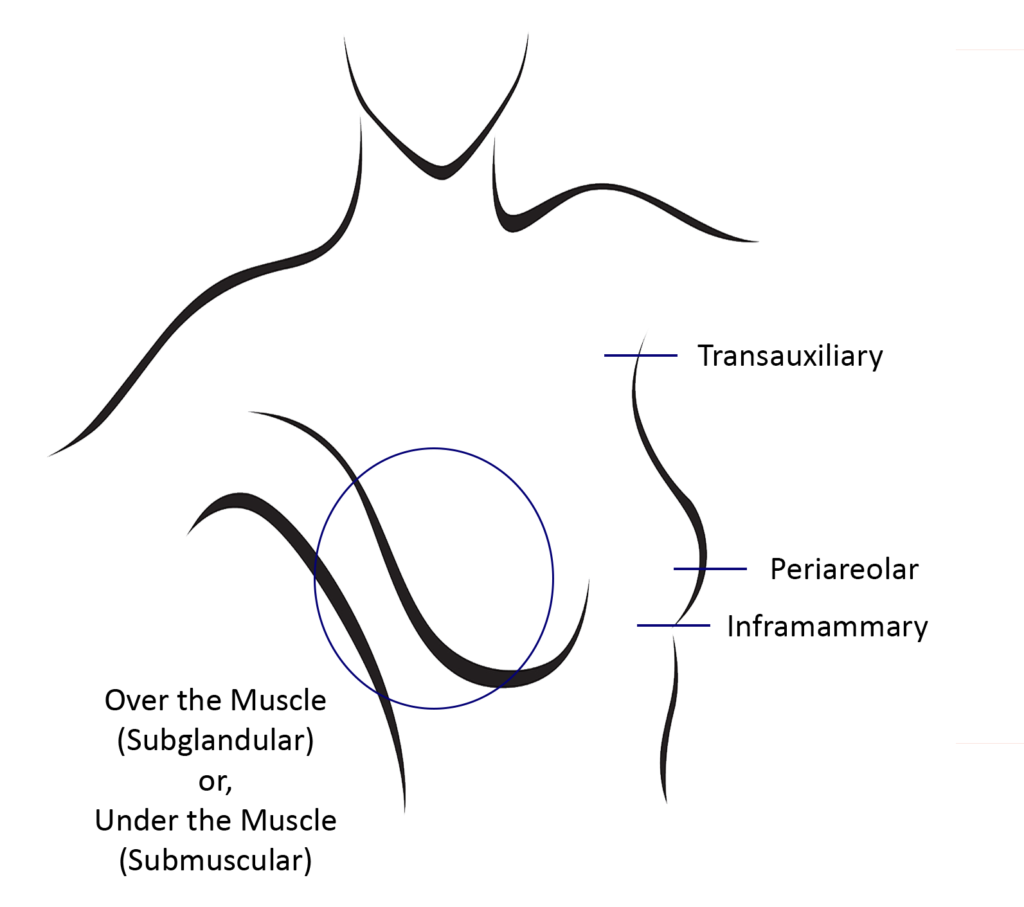 Karlinksky, Breast Aug - Infographic
