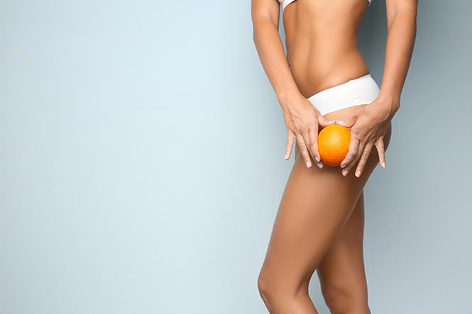 Manhattan woman holds orange peel to thigh indicating cellulite treatment